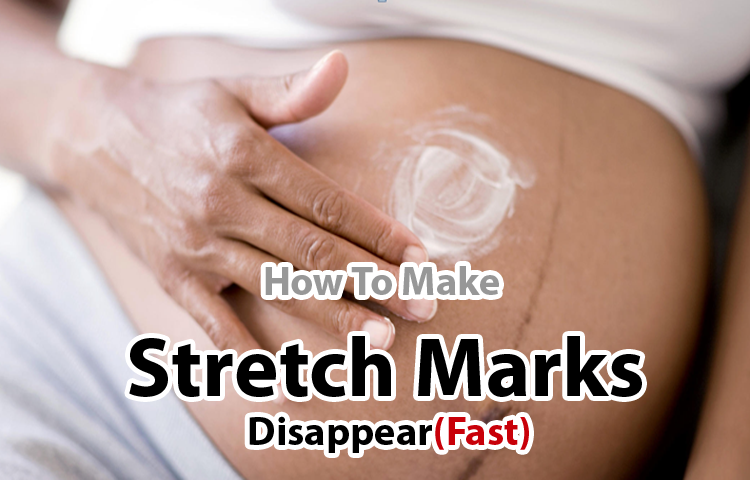 How To Make Stretch Marks Disappear : Everything You Need to Know